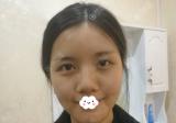 深圳联合丽格王洪军热玛吉治疗后我感觉自己的肌肤重新焕发生机