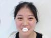 亲身体验后才发现深圳美莱肖峰给我做的面部吸脂瘦脸有多神奇