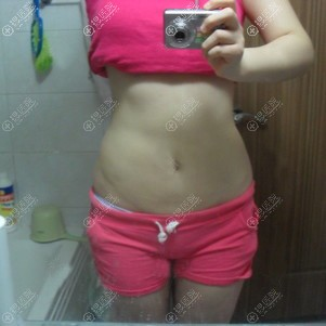 韩国365mc吸脂瘦腰腹一个月效果