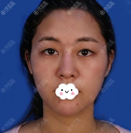 在上海薇琳医美做双眼皮前的样子