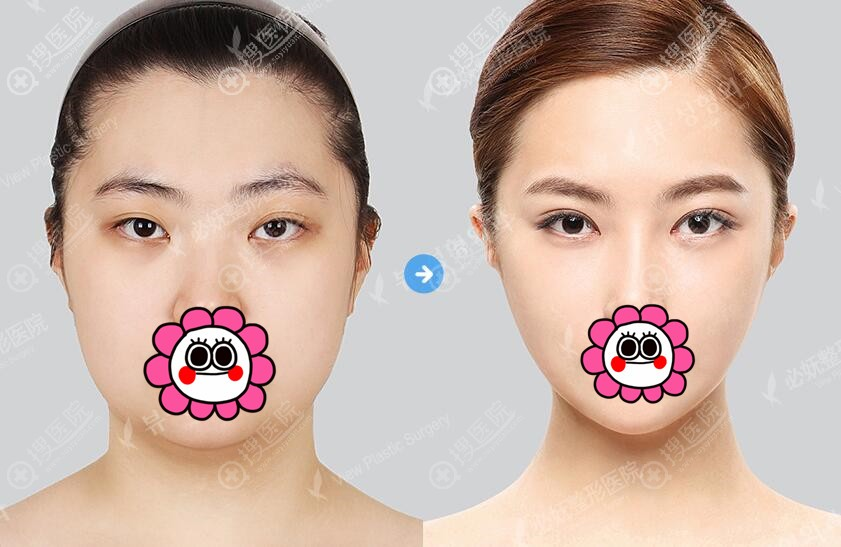 韩国必妩面部轮廓案例对比效果图
