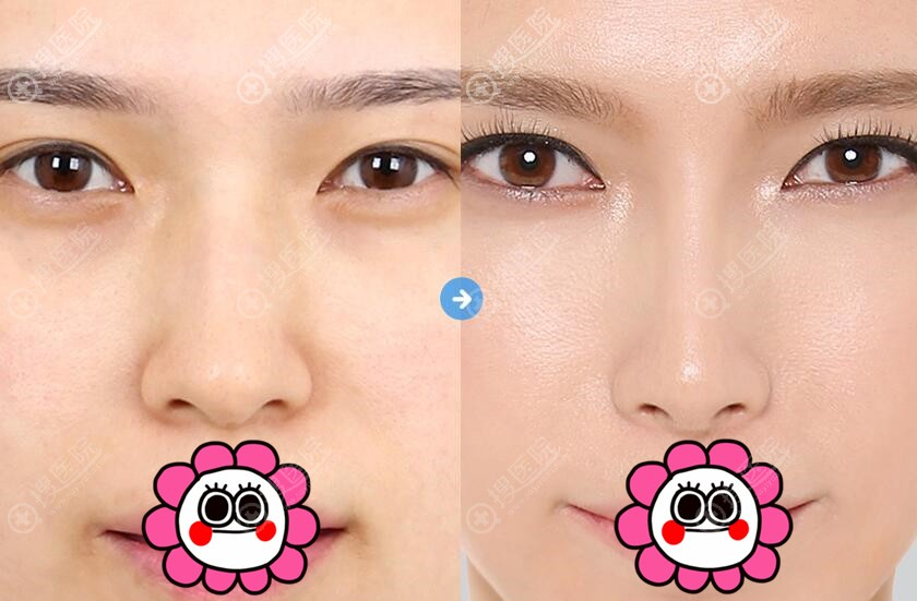 韩国必妩鼻综合案例对比效果
