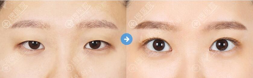 韩国必妩双眼皮对比效果图