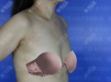 老公说我找深圳非凡医院王永祥做的假体隆胸效果不错钱花的值