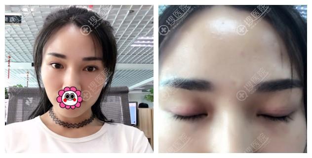 韩国清潭first双眼皮恢复一个月案例