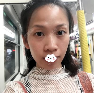 准备在深圳回来做双眼皮鼻子