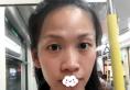 深圳回来高卿豪双眼皮和耳软骨膨体鼻综合手术让我变成9分美女