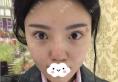 昆明美伊莱周诚医生做隆鼻修复拯救我硅胶隆鼻假体下滑后的颜值