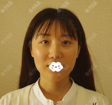 赵继华做削骨手术前照片