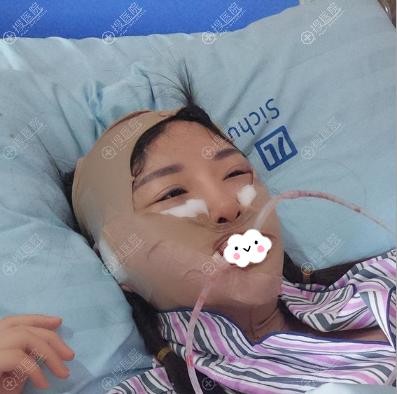 下颌角磨骨手术术后即刻