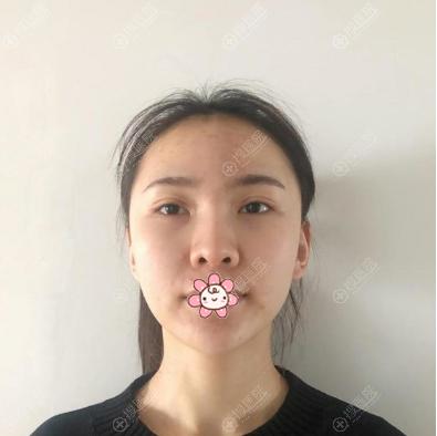 在上海愉悦美联臣做隆鼻术前照片