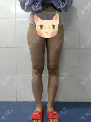 来西安画美吸脂瘦大腿前