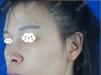 牙齿不暴但是突嘴分享我找重庆爱思特王涛做正颌手术的矫正效果
