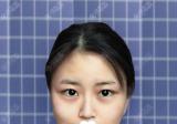 我打了瘦脸针也没见脸小就找合肥韩美罗定安做了下颌角手术