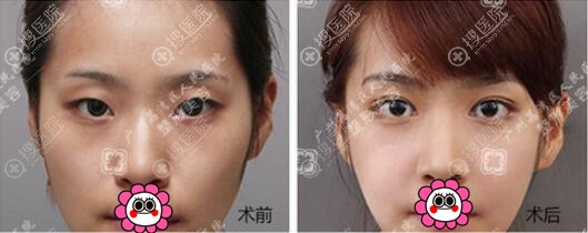 广州荔湾人民医院双眼皮案例