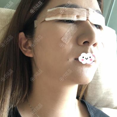 宁波薇琳双眼皮术后即刻