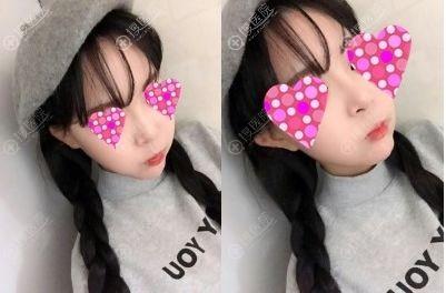 韩国will整形医院魏亨坤隆鼻垫下巴恢复后效果