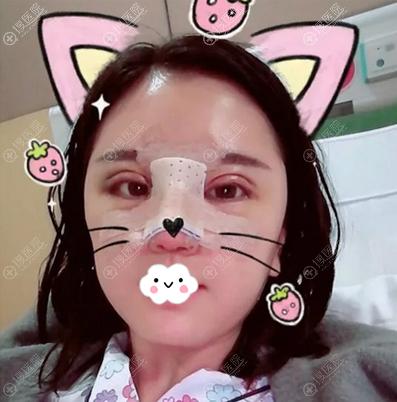 韩国碧夏双眼皮隆鼻术后即刻