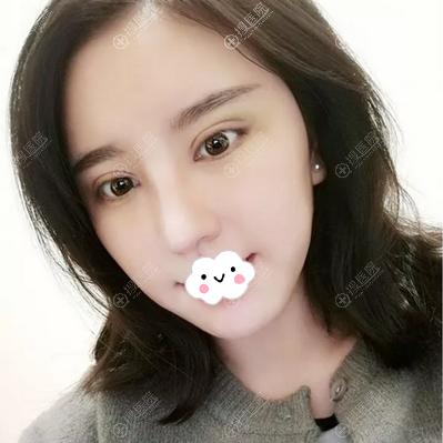 李珉仕院长眼鼻综合术后半个月恢复效果