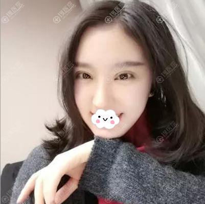 韩国李珉仕院长双眼皮隆鼻术后效果