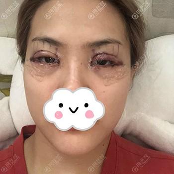 韩国秀美颜双眼皮术后即刻