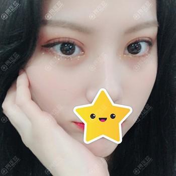 韩国秀美颜沈载善双眼皮恢复一个月效果