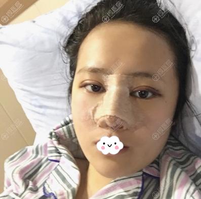 李萍原生美鼻+原生美鼻术后即刻