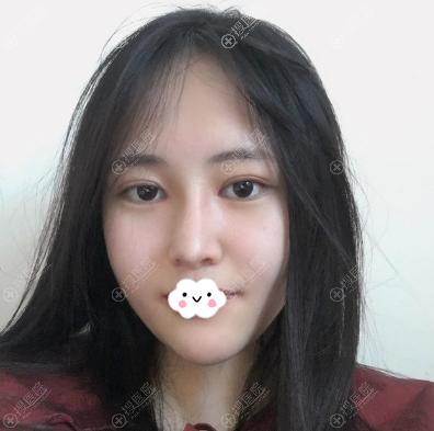 四川友谊李萍双眼皮隆鼻术后恢复照片