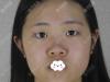 成都友谊李萍做的原生美眼和7D自然鼻综合就是我想要的自然范儿