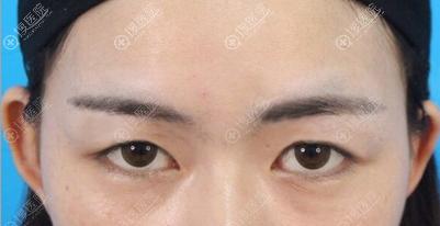 眼综合手术术前照片