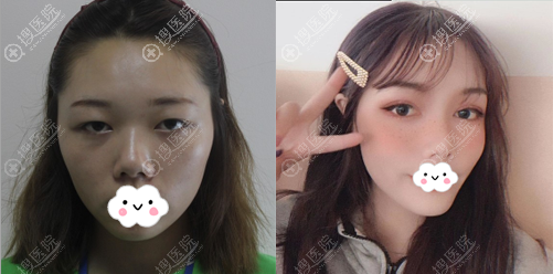 成都西区医院邓东伟双眼皮术前术后对比