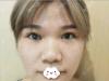 想看浙二张华辉鼻综合案例就来杭州群英整形外科医院吧
