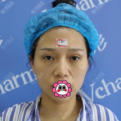 到郑州华山做鼻部修复前