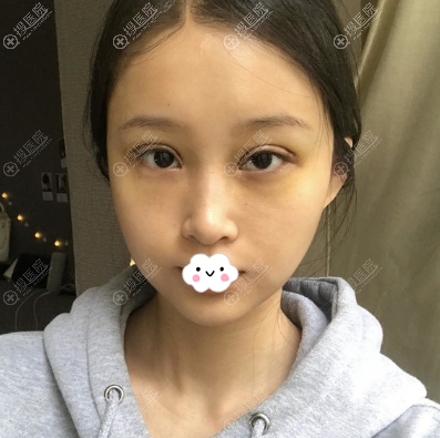 林靖眼部修复术后6天恢复照片