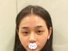 三亚红妆尚薛开兴给天生小内双的我做了平行双眼皮和去眼袋手术