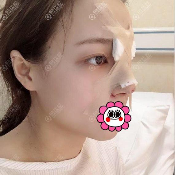 武汉五洲莱美鼻部整形术后即刻