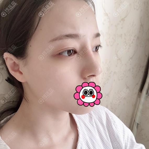 武汉五洲莱美鼻整形拆线后效果呈现