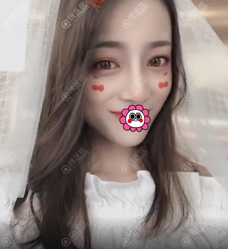 武汉五洲莱美鼻综合恢复一个月效果案例
