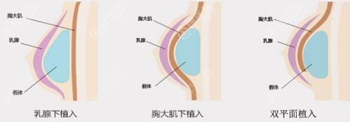假体隆胸手术的植入方式