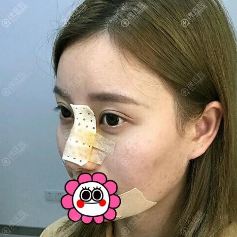 任传琦做鼻部整形修复后即刻效果