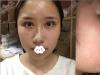 贵阳美贝尔宋俊辉假体垫下巴手术改善我正畸后下巴还后缩的情况