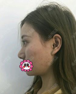 到潍坊华美做鼻整形修复时没报多大希望没想到术后效果令我满意