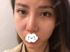 找昆明美伊莱周诚做面部吸脂手术就是想让左右脸对称脸在瘦点