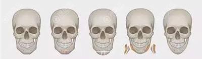 磨腮削骨手术价格与手术方法有关