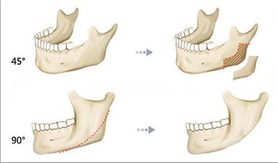 磨腮削骨手术方法示意图