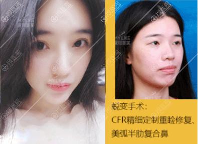 深圳美莱梁志为双眼皮隆鼻案例