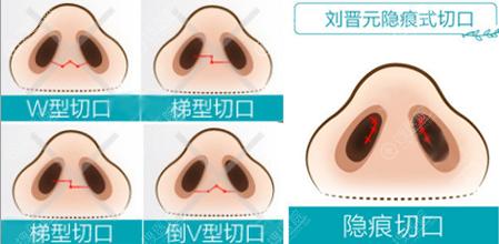 刘晋元隆鼻采用隐痕切口更隐蔽