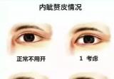 内眦赘皮分级分型,看过此文你就知道内眦赘皮一定要开眼角吗?