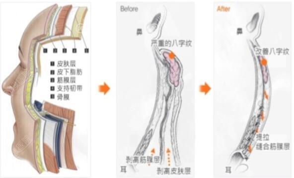 纵深肌理归位术手术方式