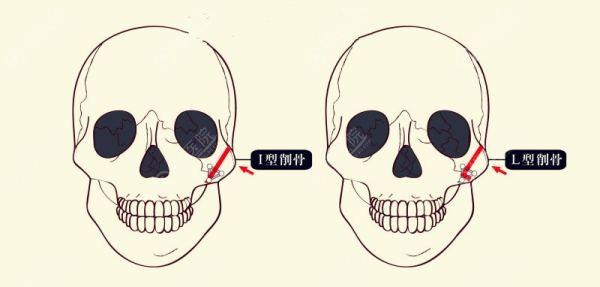 颧骨截骨方法